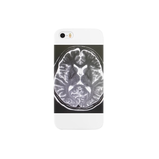 Brain Scan Smartphone cases