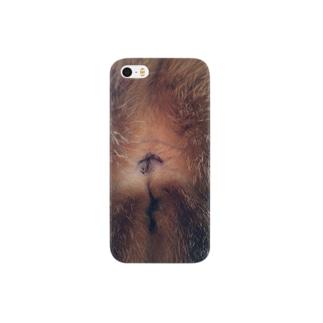 肛門 Smartphone cases