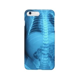 次男坊 Smartphone cases