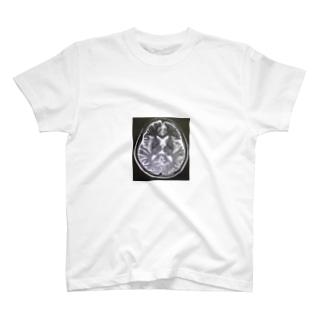 Brain Scan Tシャツ