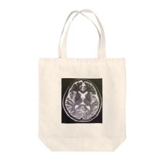 Brain Scan Tote bags