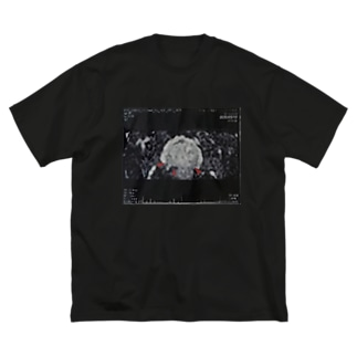 パパの前立腺T Big silhouette T-shirts