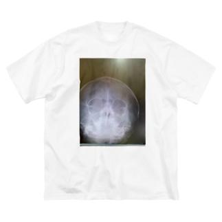 レントゲン Big silhouette T-shirts