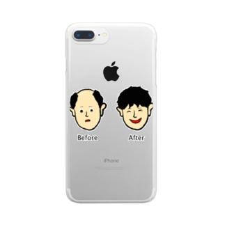 増毛 Clear smartphone cases