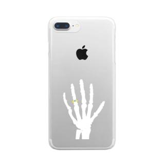 永遠 Clear smartphone cases