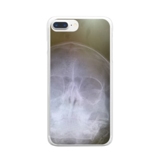 レントゲン Clear smartphone cases