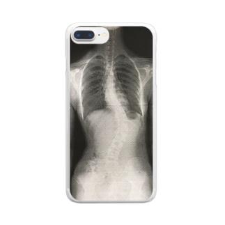 ガチレントゲン(側弯症) Clear smartphone cases