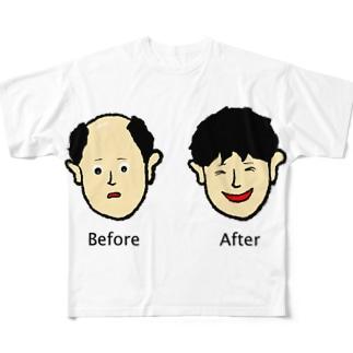 増毛 Full graphic T-shirts
