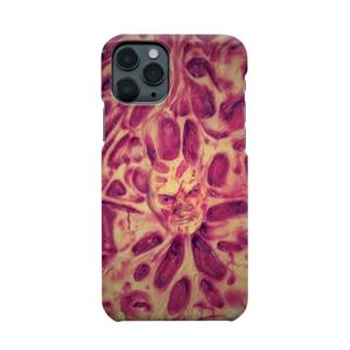 広島フレディ夢Phoneケース(赤み) Smartphone cases