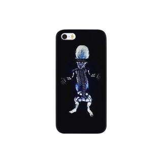 -fetus- B Smartphone cases