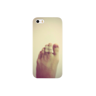 328iwaの骨折の左足 Smartphone cases