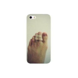 骨折の左足 Smartphone cases
