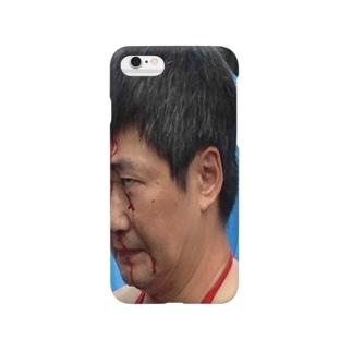流血おじさん Smartphone cases