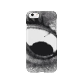 右眼 Smartphone cases