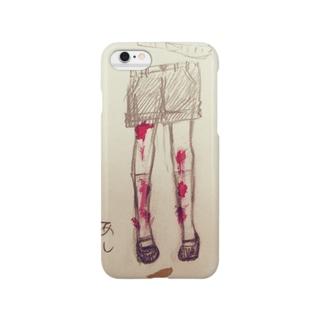 あんよが上手 Smartphone cases