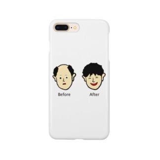 増毛 Smartphone cases