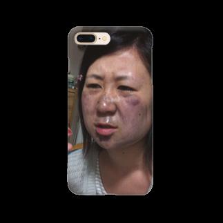 _512gのう Smartphone cases