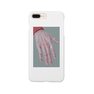 手の甲 Smartphone cases