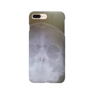レントゲン Smartphone cases