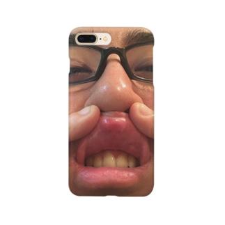 タケ口内炎BASTARD Smartphone cases