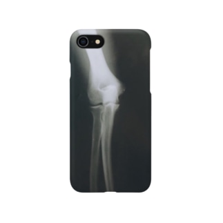 めんつゆの甲子園球児の肘 Smartphone cases