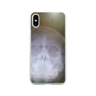 レントゲン Soft clear smartphone cases