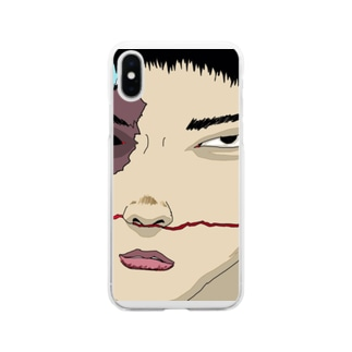 #stopasianhate Soft clear smartphone cases