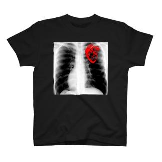 X-ray Tシャツ
