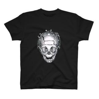 頭蓋骨縫合早期癒合症 MCDO法(正面) T-shirts