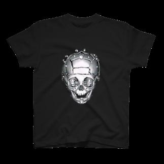 かんちの頭蓋骨縫合早期癒合症 MCDO法(正面) T-shirts