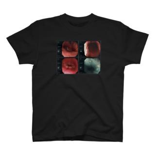 【グロ注意】 胃カメラ 記念品 T-shirts