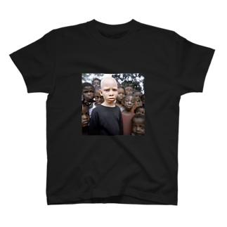 アルビノ黒人T T-shirts