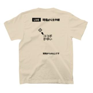 【バックプリント】 ココがかゆい T-shirts