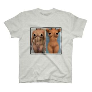 整形大国 T-shirts