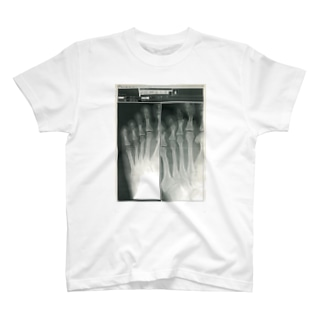 X-ray step T-shirts