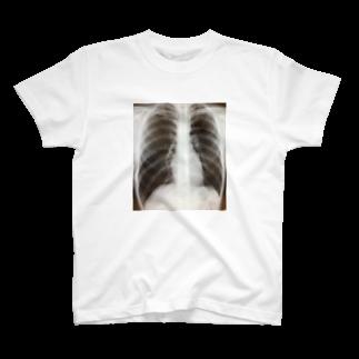 zarazarazara35の健康的肺 T-shirts