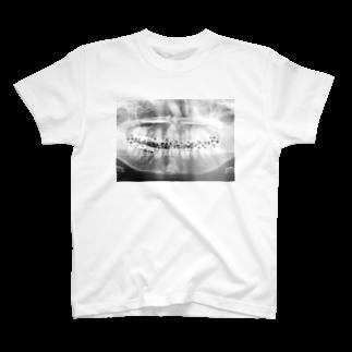 C8H11NO2のC8H11NO2 - SPEAK OUT 声を上げる T-shirts