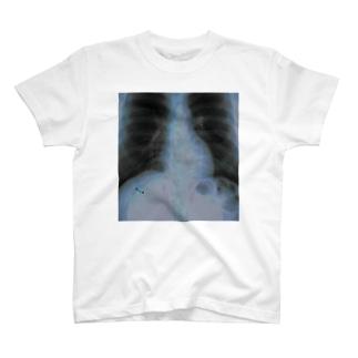 腫瘍 T-shirts