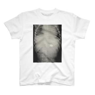 レントゲン(磁石誤飲) T-shirts
