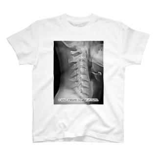 月永さんの首 T-shirts