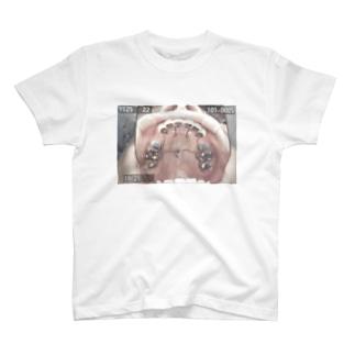 歯列裏矯正 T-shirts