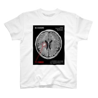 脳みそ(梗塞バージョン)[ヒロザ] T-shirts