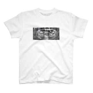 Wistom T T-shirts