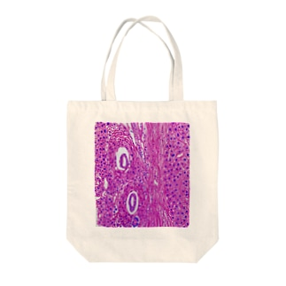 Pathology3 Tote bags