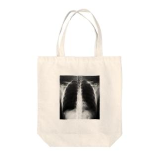 私のレントゲン(身体) Tote bags
